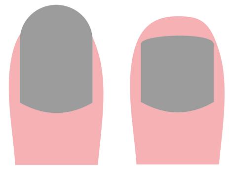Zarastajúce nechty
